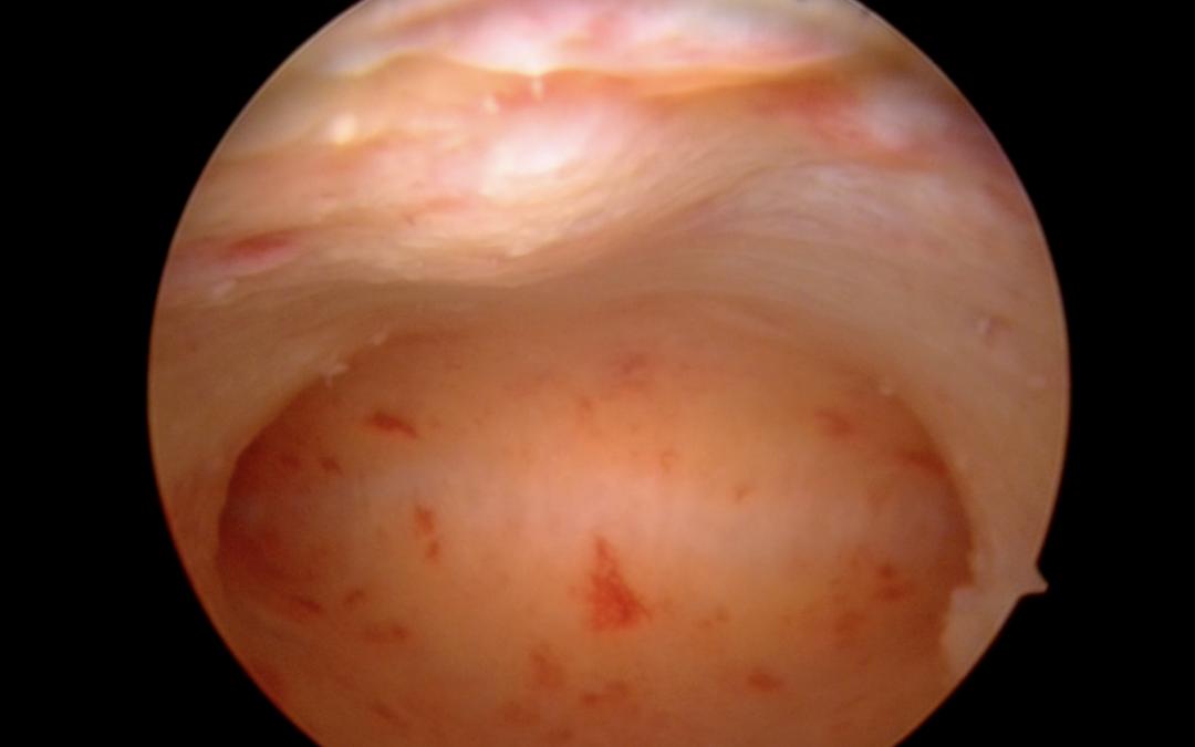 Office-Mini-Hysteroskopie ohne Narkose, klare Diagnose in einer Minute